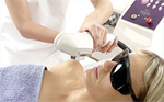 Pulsar IPL treatments